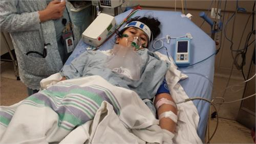 mississauga girl loses 2 limbs after infection doctors thought was influenza