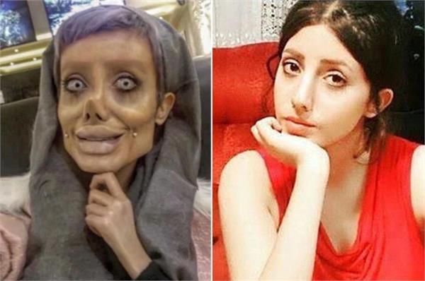 sahar tabar undergoes face plastic surgery 50 times to become angelina jolie