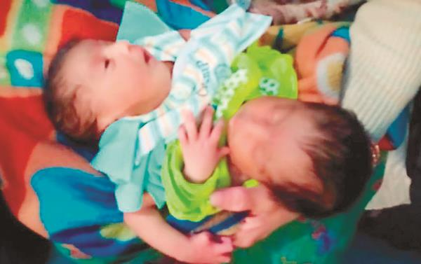 an unusual baby born in panipat