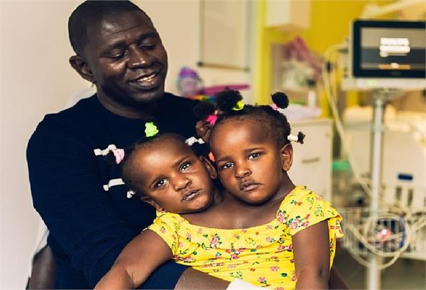 father of conjoined twins faces a heart breaking choice over separation surgery