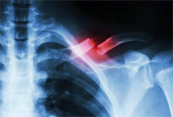 experimental study speeds up bone healing with 2 common medications